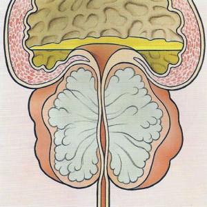 Prostatavergrößerung, Harn kann nicht abfließen