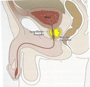Prostatavergrößerung, Harndrang, häufiges Wasserlassen, benigne prostatahyperplasie