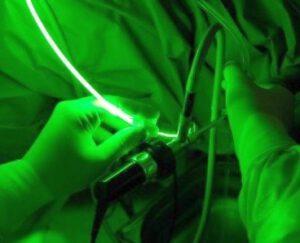 Greenlight Laserverfahren Prostatavergrößerung
