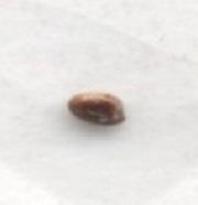 Prostatastein, Korpora Amylacea